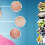 Top 8 best Foods to Treat Skin Problems
